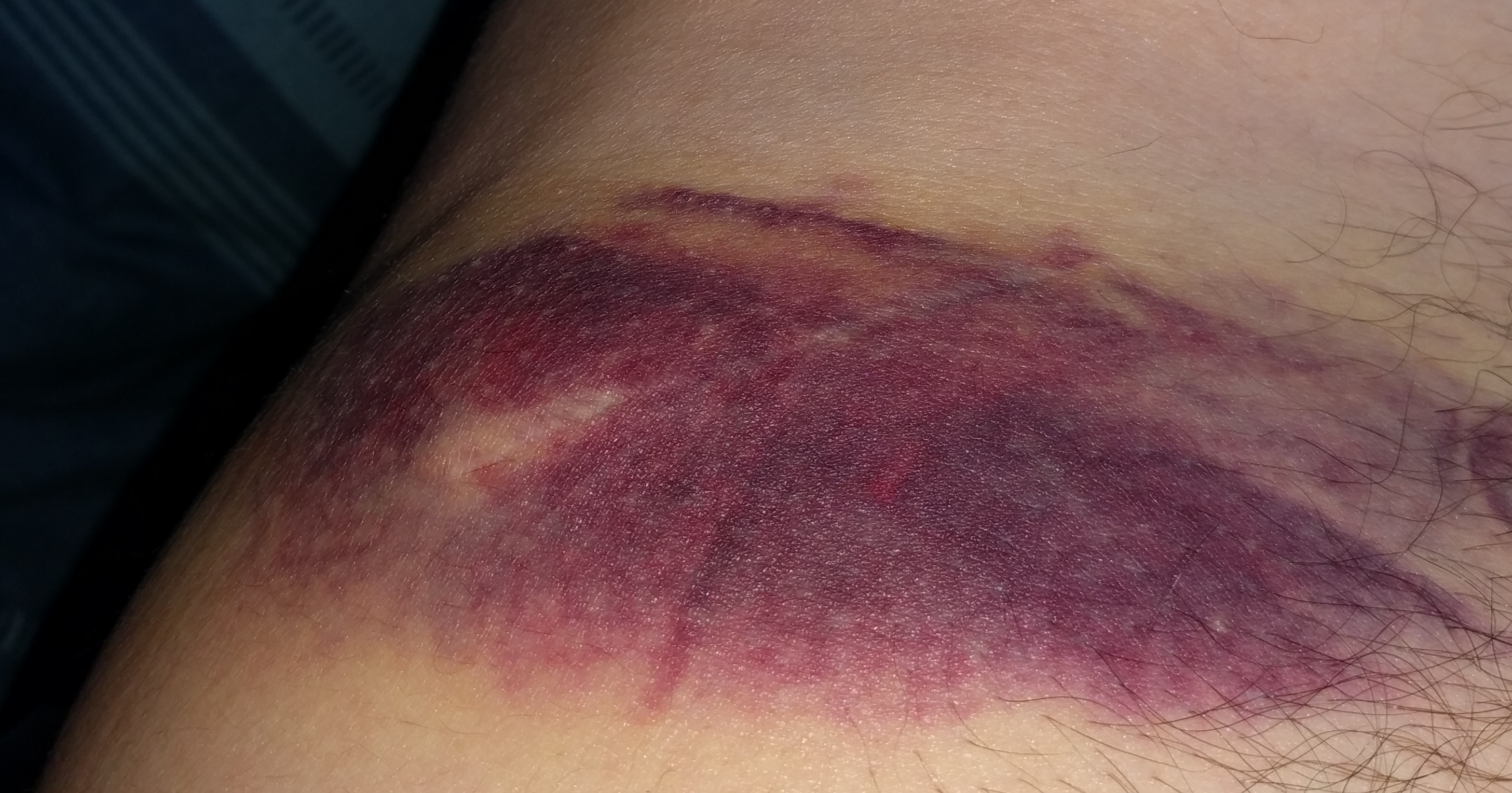 Post-TZ-crash bruised hip